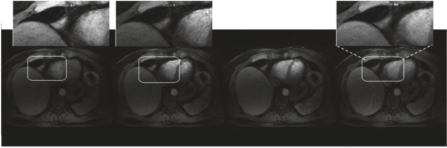 Reduction of Motion Artifacts in the Recovery of Undersampled DCE MR Images Using Data Binning and L+S Decomposition
